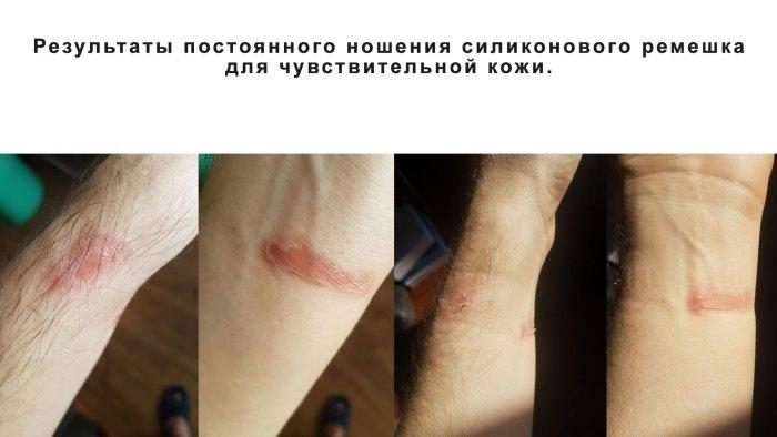 Результаты постоянного ношения силиконового ремешка для чувствительной кожи